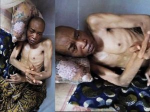 Nollywood Actor On Sickbed For 20 Years, Cries For Help (Photo)