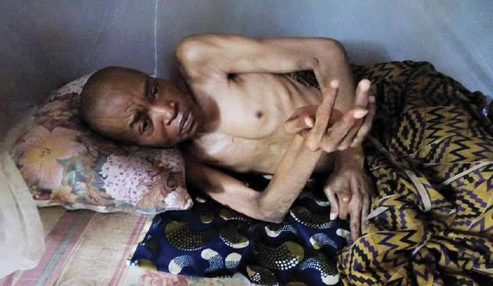 Nigerian actor on sickbed for 20 years seeks financial assistance
