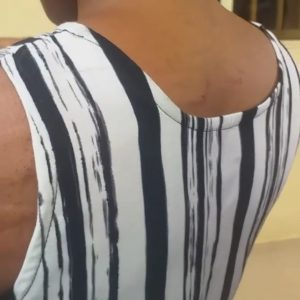 UNIZIK Student Left With Swollen Skin After Lecturer Allegedly Beat Her For Not Wearing Ankara (Video)