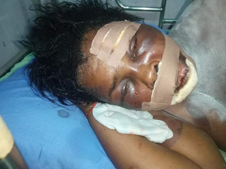 Yahoo Boy Tries To Pluck Out His Mother's Eyes For Rituals In Delta